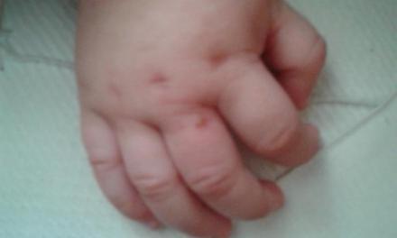 Picadas de Insetos – Alergia