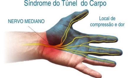 Síndrome do Túnel do Carpo – Dores nas Mãos