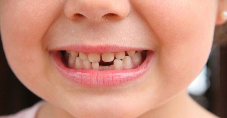 fase de troca de dentes