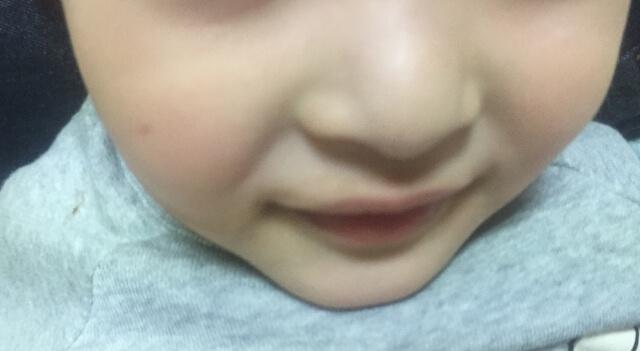 1歳の副鼻腔炎の症状!赤ちゃんや子供はなりやすい?耳鼻科を受診して
