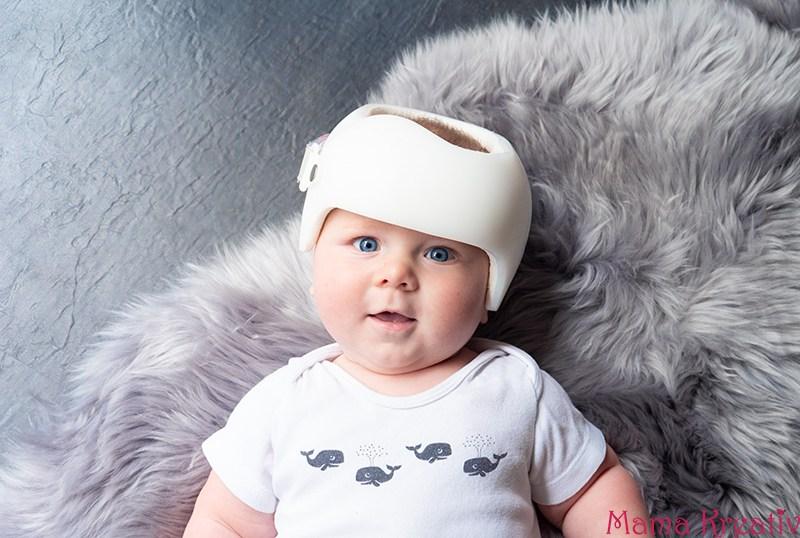 Helmtherapie ja oder nein: unsere Erfahrungen mit dem Babyhelm