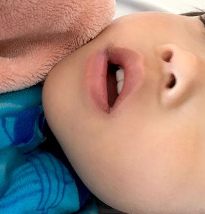 子どもの口開き 閉じさせる方法