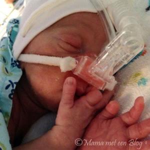 eclampsie zwangerschap mamameteenblog 4