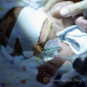 eclampsie zwangerschap mamameteenblog.nl 2