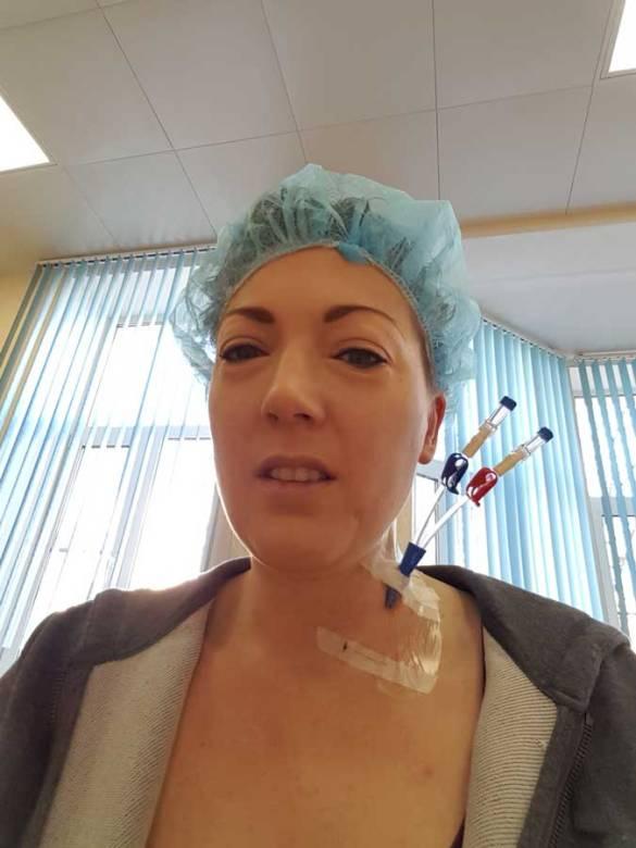 Dag min 8: neklijn + vierde dag stamcel stimulatie