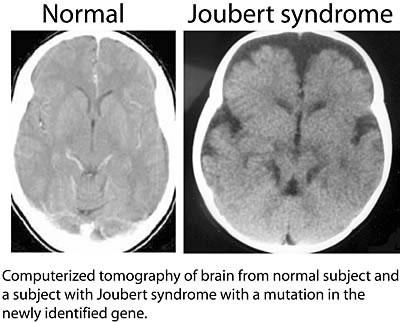 Le syndrome de Joubert : La maladie de Mon fils