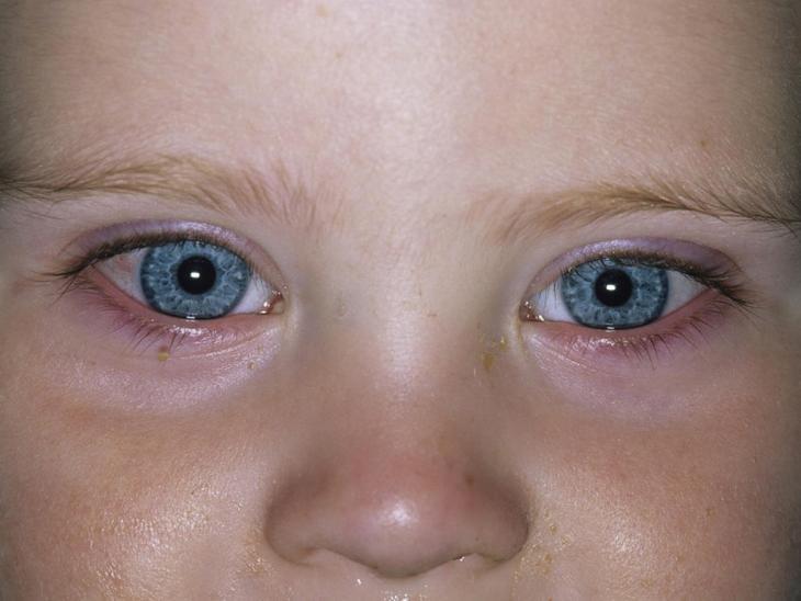 konjuktivitis kod djece simptomi