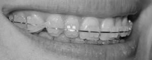 Aparat dentar ceramic_elastice