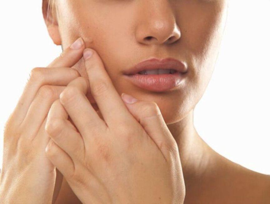 menopause-acne