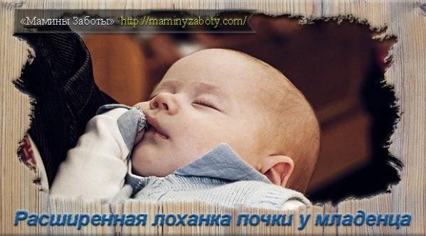 Лоханка почки расширена у новорожденного: причины и ...