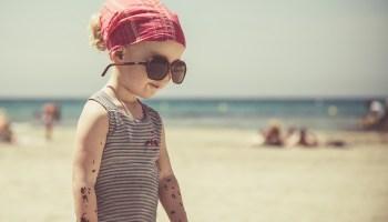 Bambini e scottature solari: come prevenirle