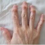 指の第一関節が痛く変形してくるヘパーデン結節の治し方