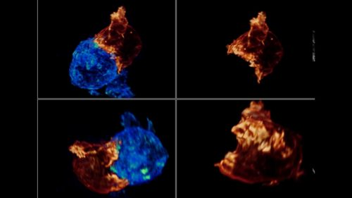 がん細胞を破壊しにかかる白血球のモゴモゴした動きがすごい