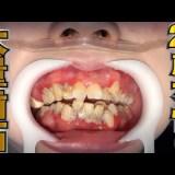 【閲覧注意】25歳女性の溜まりに溜まった歯石を取り除くきもちのいい動画