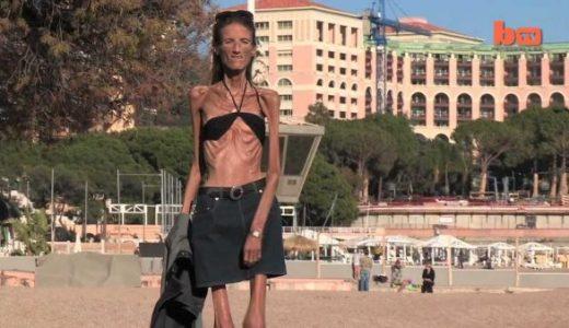 長年にわたって拒食症を患ってきた女性が過度なダイエットに対する警鐘を鳴らす