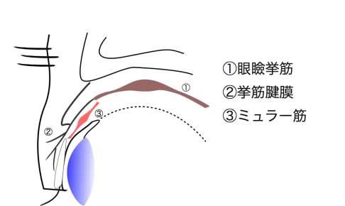 挙筋腱膜の下にいるミュラー筋
