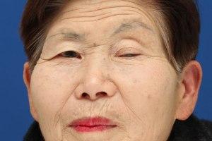 左眼瞼下垂術前