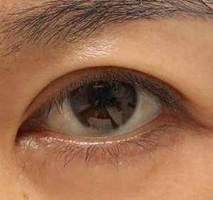眼瞼下垂術後の写真。下三白眼の状態が変化した。
