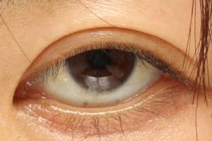 眼瞼下垂症手術前の下三白眼