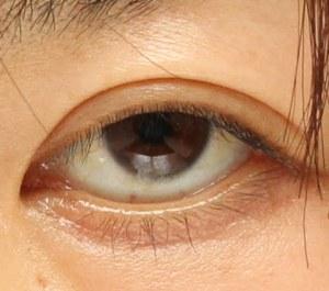 眼瞼下垂症手術前の写真。下三白眼