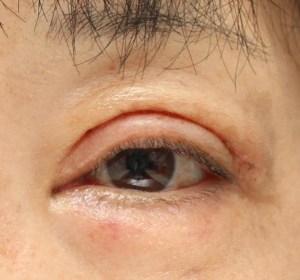 眼瞼下垂術後2週間の写真。紫斑も落ち着きを取り戻しつつある。