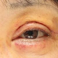 眼瞼下垂術後1週間