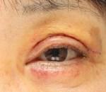 心配無用!眼瞼下垂手術後の出血斑(青あざ)はまる1ヶ月で綺麗に。
