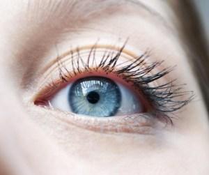 複数の重瞼線