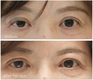 眼瞼下垂手術前後の写真。初回手術後、右の低矯正があります。
