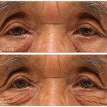眼瞼下垂術前術後の写真。まぶたの縦方向0.5mmアップ。黒目が下に0.5mm下がり、黒目の露出量が1mm分アップ。
