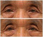 眼瞼下垂の治療をしても、顔の印象を変えたくない!