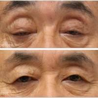 眼瞼下垂術前術後の写真。まぶたの中身の修復です。皮膚のたるみ取りはしませんでした。