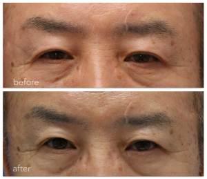 眼瞼下垂術前と術後9ヶ月の写真。どちらのまぶたがトラブルにあったか分かりますか?
