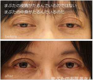 眼瞼下垂治療前後の写真。まぶたの中身の障害を解決する