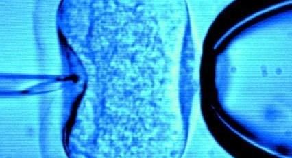 Hospital pledges to honour snubbed IVF nurse pioneers - MTG UK -