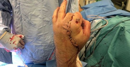 Surgeons save man's hand by attaching it to his groin for two weeks - MTG UK -