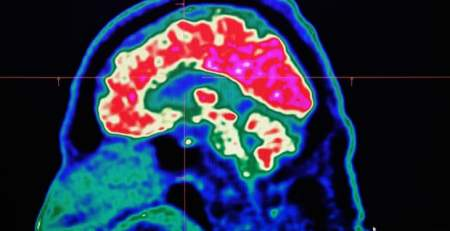Activity sharpens even dementia-affected brains, report suggests - The Mandatory Training Group UK -