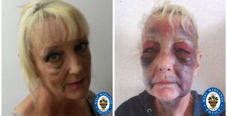 Domestic violence victim shares horrific image - MTG UK -