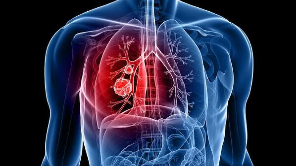 UK to carry out mass lung cancer screening trial in London - MTG UK