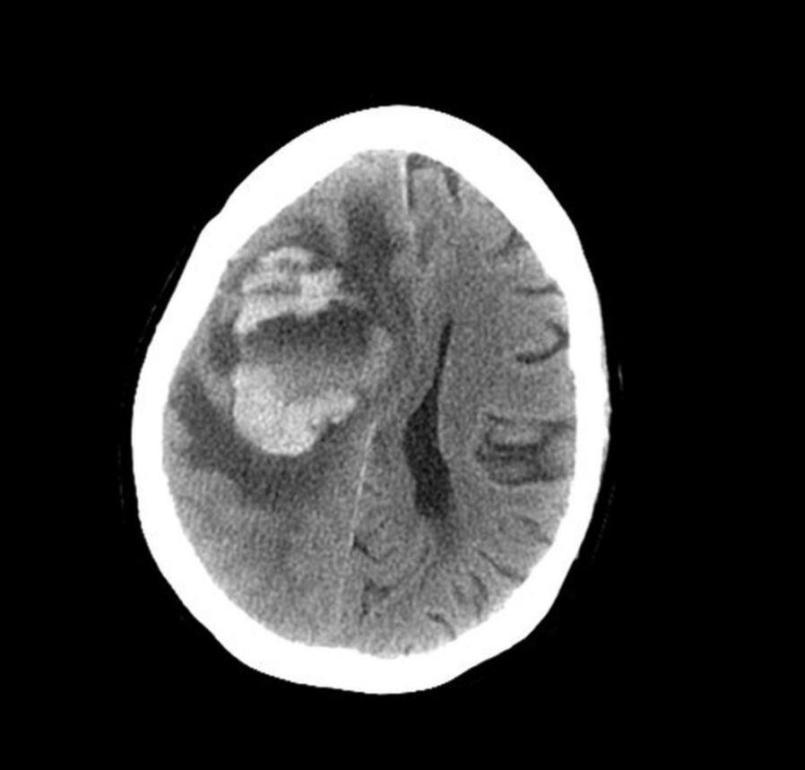 Woman's brain turned into 'bloody mush' - MTG UK