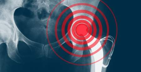 faulty medical implants harm patients around world - MTG UK