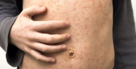 Measles deaths 'staggering and tragic' - MTG UK