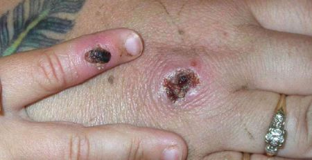 Rare case of monkeypox diagnosed in England - MTG UK