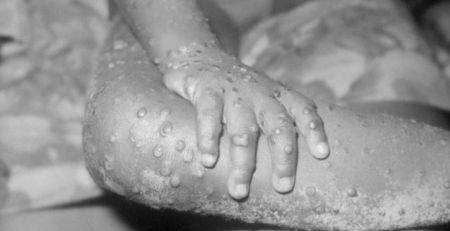UK patient diagnosed with monkeypox - BBC NEWS