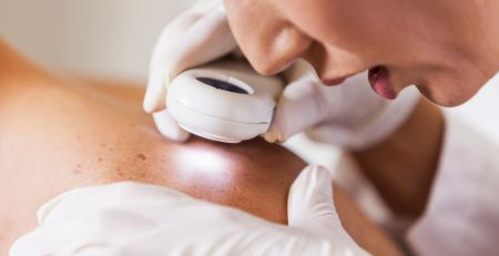 Skin cancer warning after 150% rise in UK deaths since 1970s - MTG UK