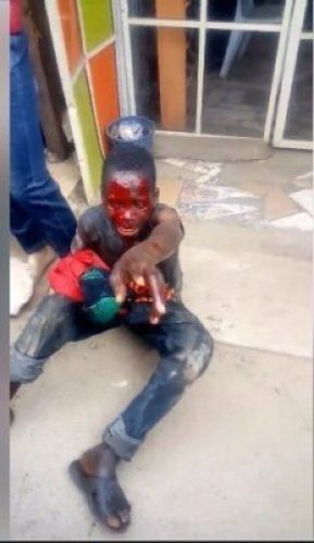 8715978_capture2_jpeg72528766582dfff47d3117d82567eba3307703715 Boy Caught Stealing Female Underwear. Left Bloodied (Photos)