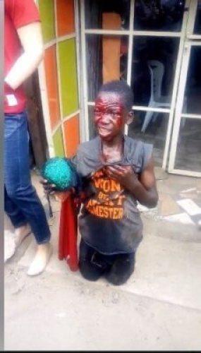 8715979_capture3_jpeg4480c4b52c001b14a641722f3e658923684193235 Boy Caught Stealing Female Underwear. Left Bloodied (Photos)