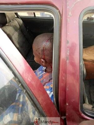 55575505 10216722667592962 7213686397297754112 n - #KanoRerun: More Graphic Photos Of Violence In Kano Re-Run Election