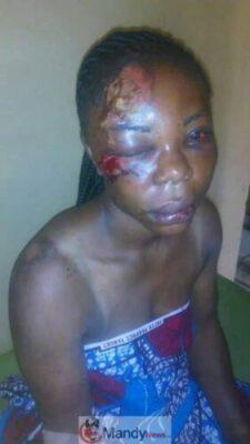 8927239 bado1 jpg43bb8b84b5f17dfd1c163c83cc10448e - Nigerian Woman Disfigured By Her Husband, Says She Still Loves Him (Disturbing Pix)