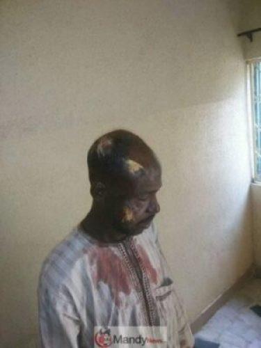D2VBS2iWkAAA14G-1 #KanoRerun: More Graphic Photos Of Violence In Kano Re-Run Election